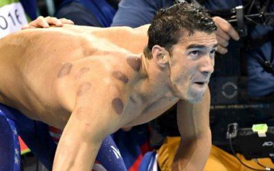 Olympische gouden medaillewinnaar maakt gebruik van Hijama!